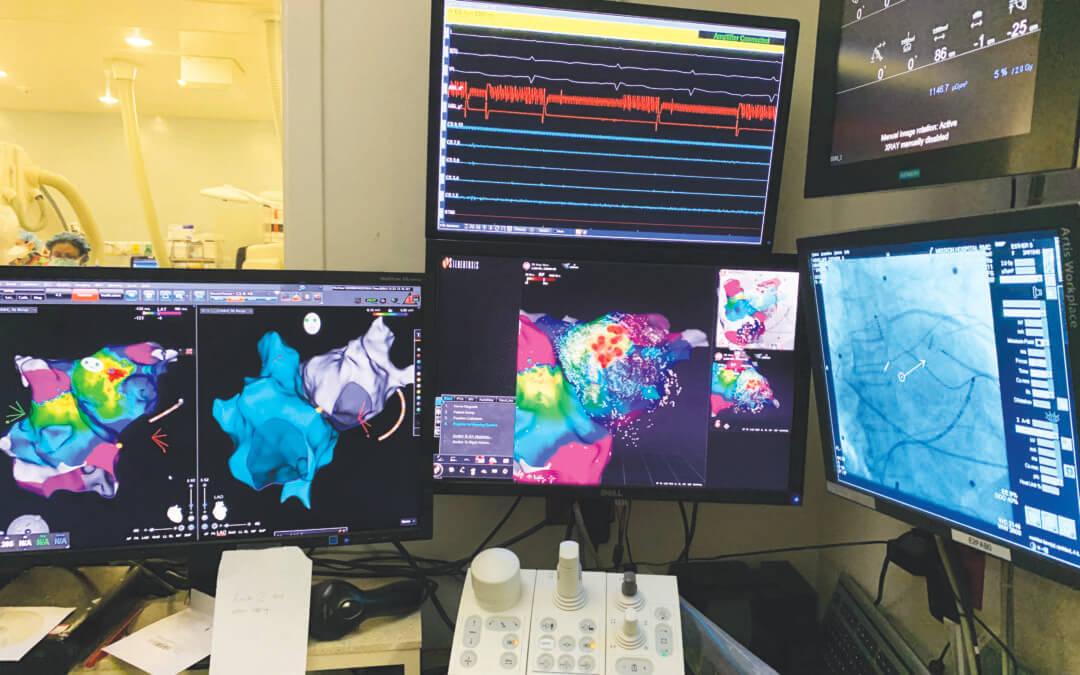 Mission Hospital Celebrates 1000th Robotic Cardiac Ablation Procedure